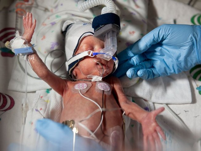 One of Elinor Carucci's amazing photos of Baby David from Children's Hospital of Wisconsin.