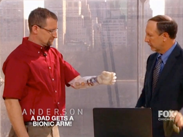 "Medford's Matt Razink received a functional prosthetic hand last week on ""Anderson."""